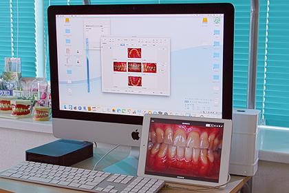 診療台DentalX(デンタル・テン)コンピューターソフト